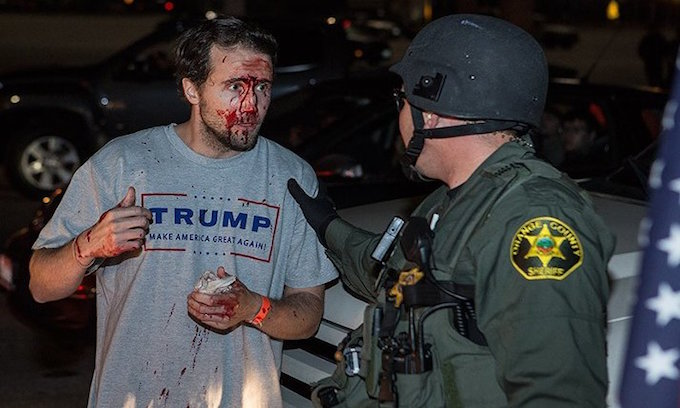 trump_supporter_bloody
