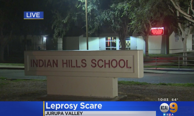 Two Unconfirmed Cases of Leprosy Reported At Riverside County Elementary School