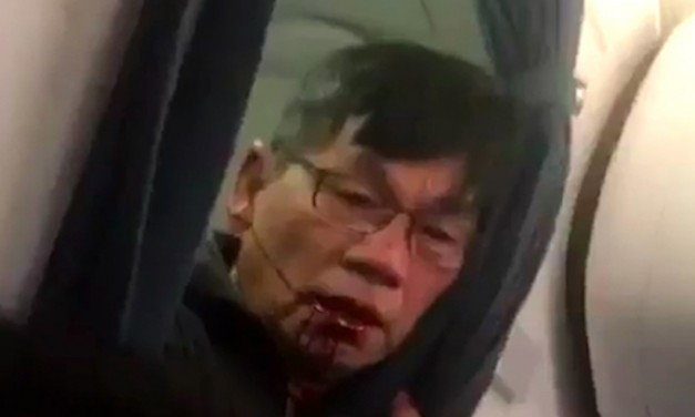 Lawyer: Man dragged off United Airlines Plane has Concussion, Broken Nose and Lost Teeth