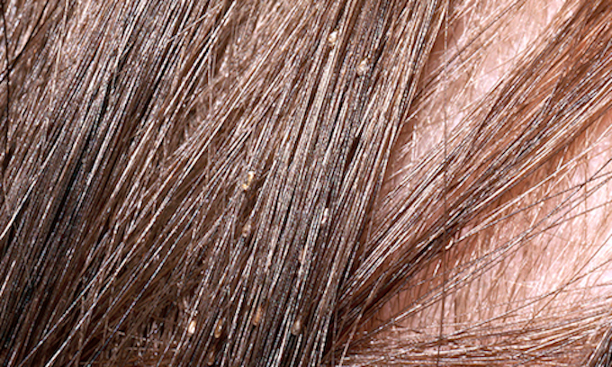 Lice have become politically correct in Kansas schools